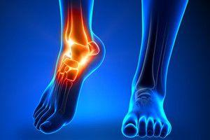 Which Is The Best Achilles Pain Tendonitis Procedure For Me?
