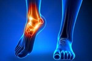 Wondering Where Has The Best Achilles Pain Tendonitis Physic...