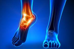Where Has The Best Physicians For Achilles Pain Tendonitis (...