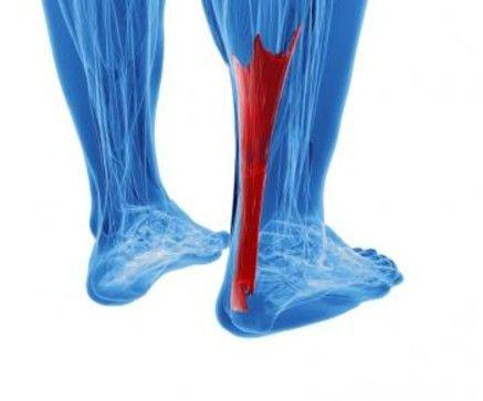 Three Factors Achilles Pain Tendonitis Surgeons Recommend Yo...