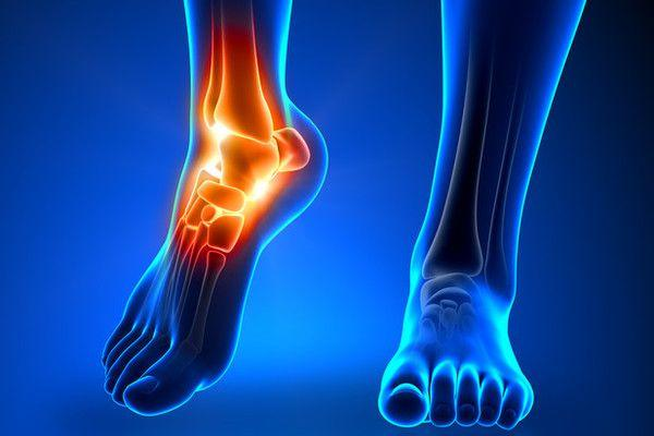 An Easier Recovery From Ankle Fracture Trauma | Rothman