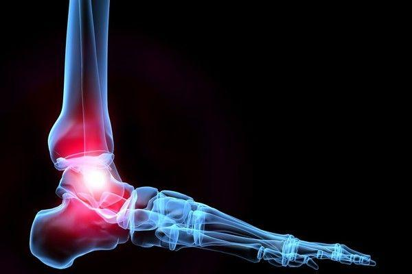 "Discover the Answer to Your Question, ""Do I Need Total Ankle..."