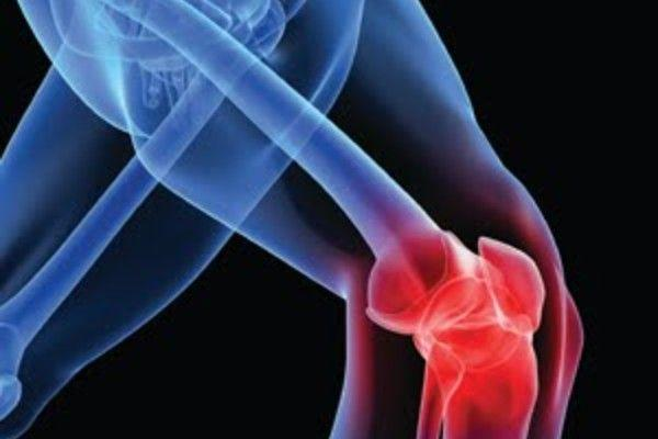 The Profile of a Patient Having Bilateral Total Knee Arthrop...