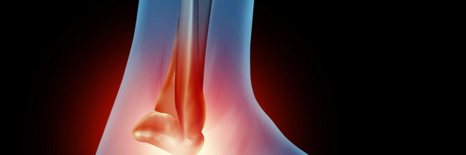FAQs About Ankle Sprain Prevention & Treatment