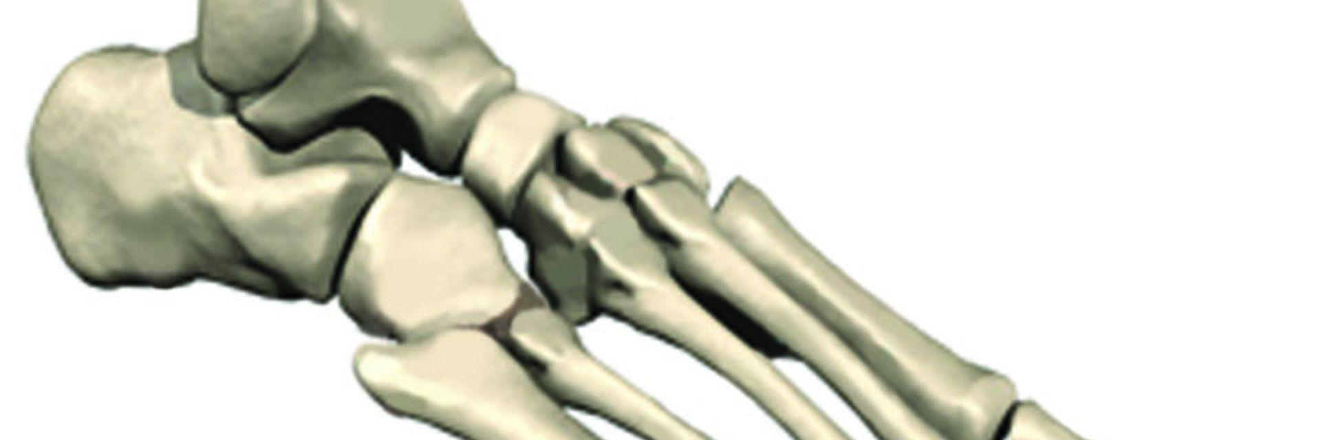 Find a Total Ankle Replacement Surgeon in Philadelphia