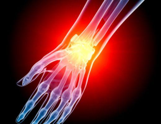 3 Steps You Can Take Now to Avoid a Distal Radial Fracture P...