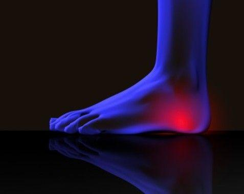 Looking For Heel Spurs Physicians?   Rothman Orthopaedic