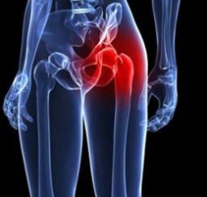 What to Expect During Your Recovery from Total Hip Replaceme...