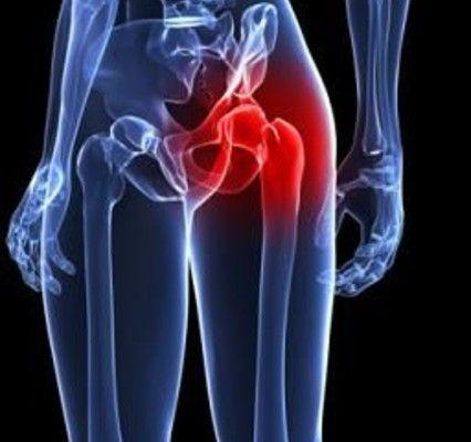 FAQs About Hip Impingement   Rothman Orthopaedic Institute