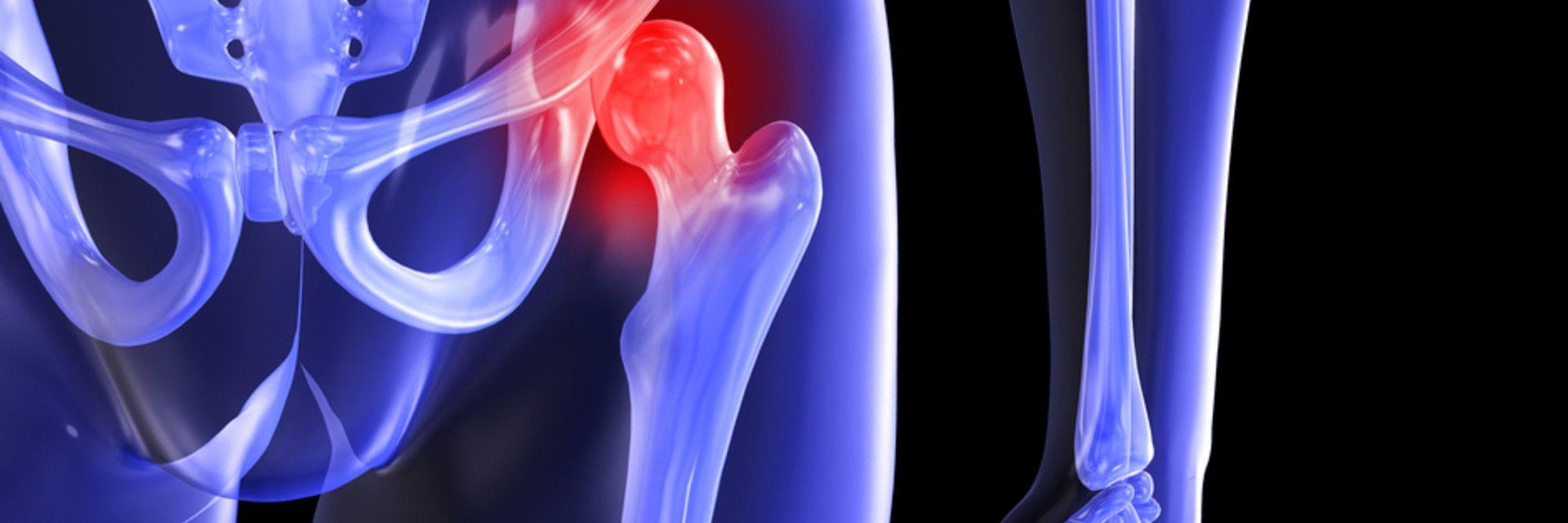 Arthritis Hip Becoming a Problem?