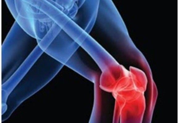 FAQs About Recovery From ACL Surgery