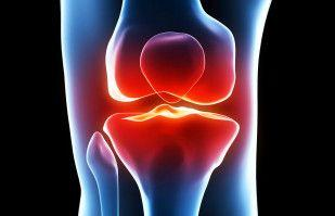 Three Common Culprits of an Arthritic Knee