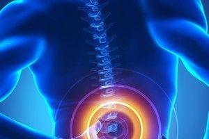 Are You Wondering Where to Get Spinal Fusion Surgery?