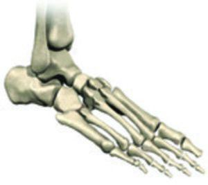 3 Important Facts About Total Ankle Replacement Surgery Reco...