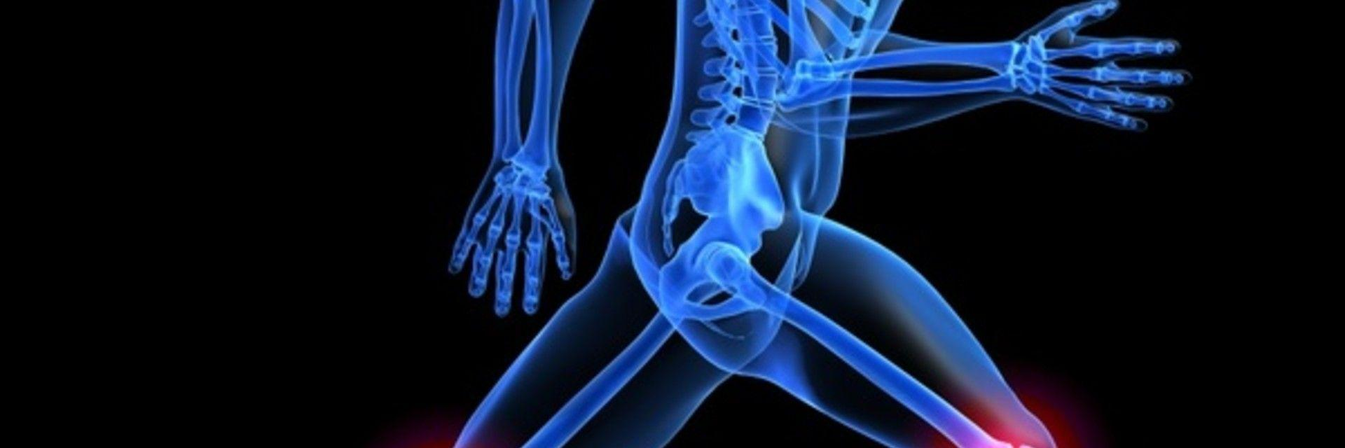 Finding a Solution for Severe Osteoarthritis in the Knee
