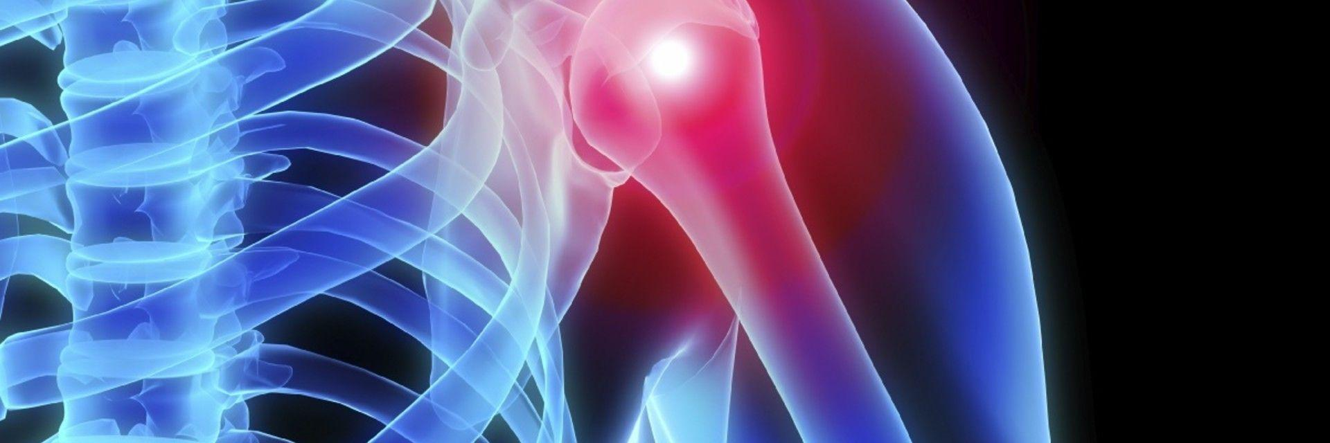 Starting the Conversation About Surgery for Total Shoulder R...