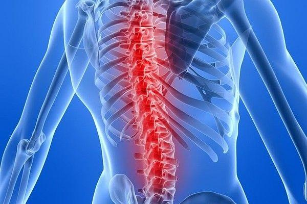 Who Needs Spinal Fusion Surgery & How Does It Work