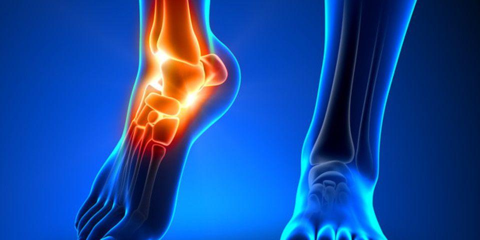 An Easier Recovery From Ankle Fracture Trauma | Rothman Orthopaedic
