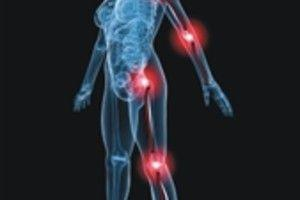 Check Your Symptoms: Arm or Leg Pain Without Weakness   Rothman Orthopaedic  Institute