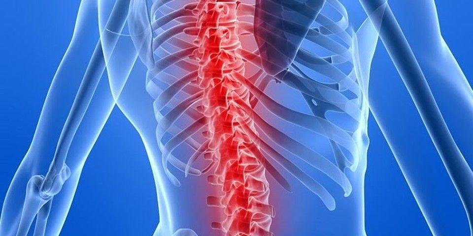 3 Things You Need to Know About Spinal Fusion Recovery | Rothman  Orthopaedic Institute