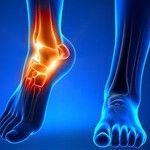 Where to Get Achilles Pain Tendonitis Procedure Consultation...