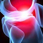 FAQs of Osteoarthritis in Knee