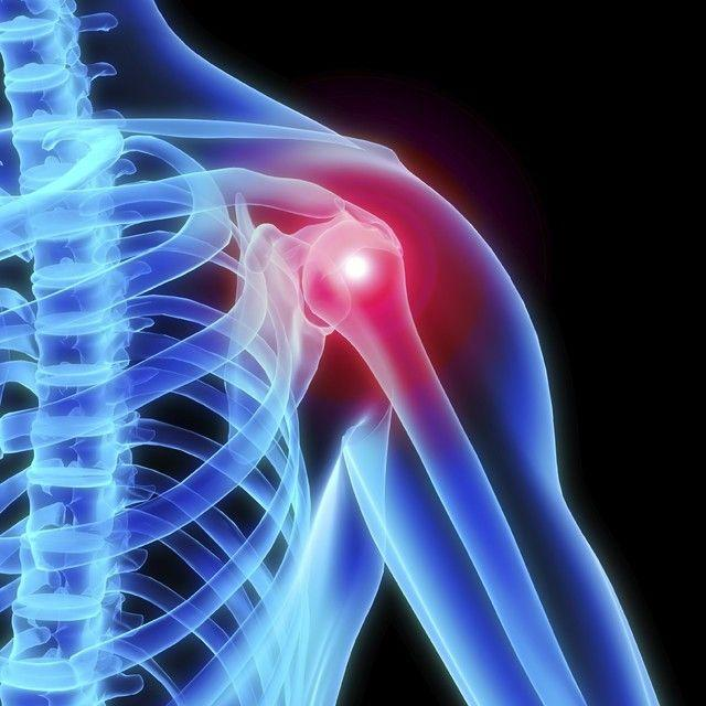 Everything You Need To Know About Shoulder Arthritis Treatme...