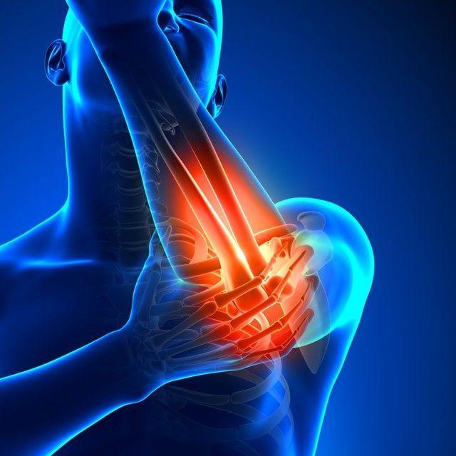 FAQs of Tennis Elbow Treatment