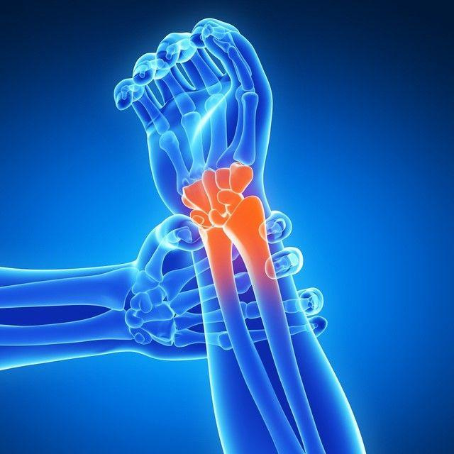 Healthy Bone Tips from Rothman Institute's Distal Radial Fra...